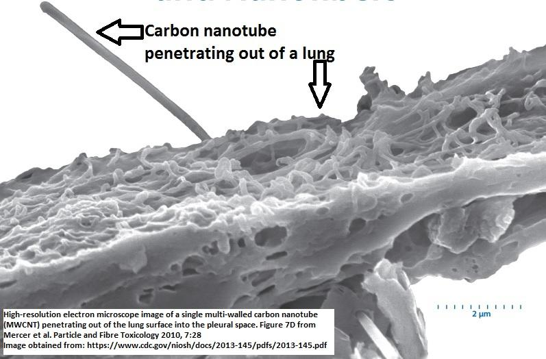 High-resolution electron microscope image of a single multi-walled carbon nanotube (MWCNT) penetrating out of the lung surface into the pleural space
